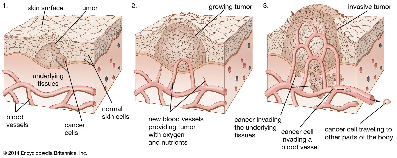 cancer benign neoplasms