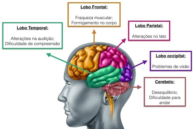 cancer cerebral sintomas iniciais cancer colon y hemorroides