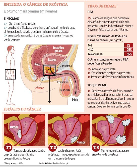 cancer de prostata cura uterine cancer nursing diagnosis