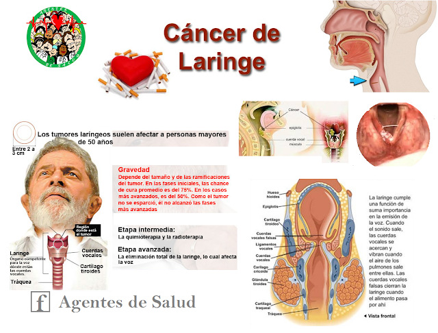 cancer laringe y cuerdas vocales