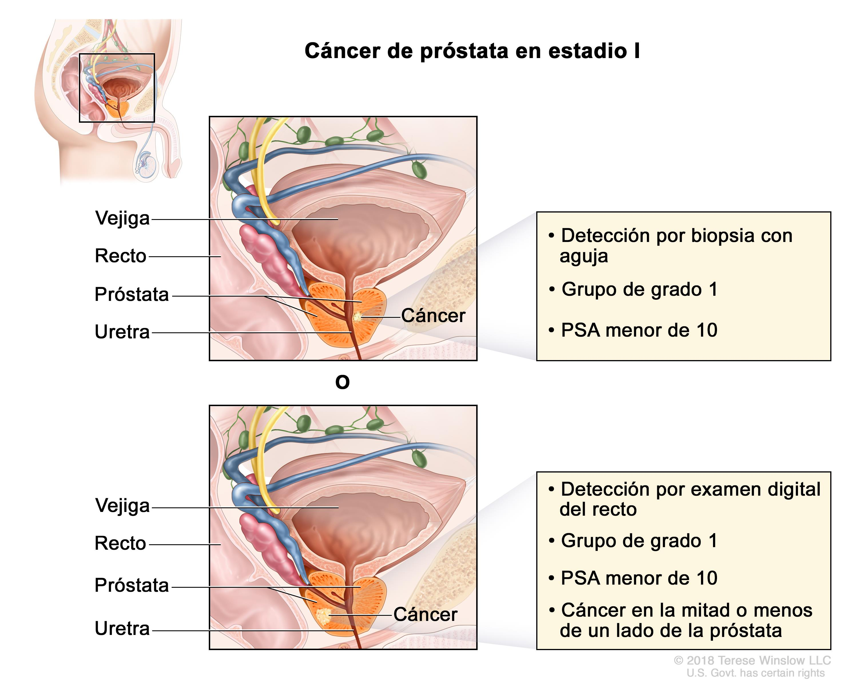 cancer recidiva prostata cancer cerebral tiene cura