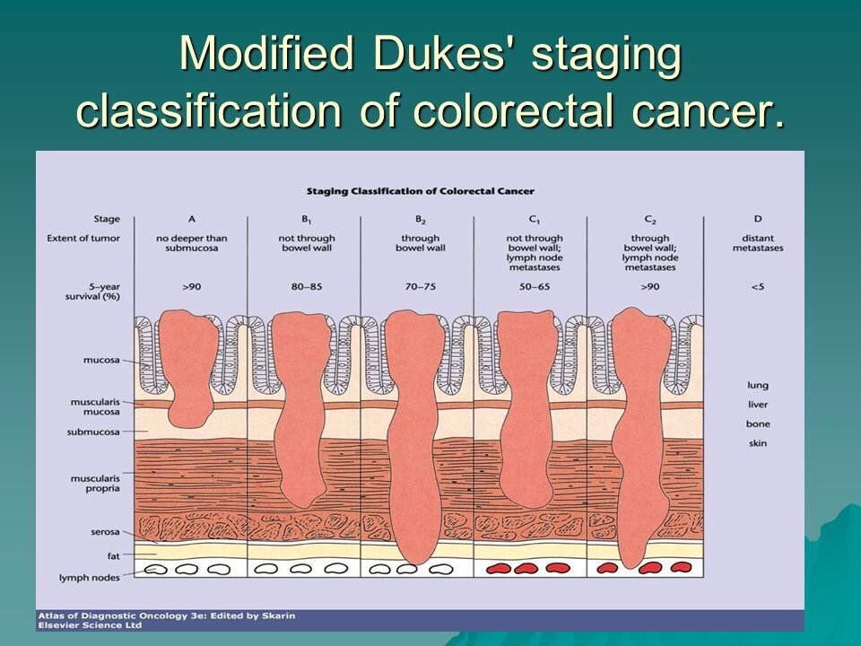 colorectal cancer dukes staging