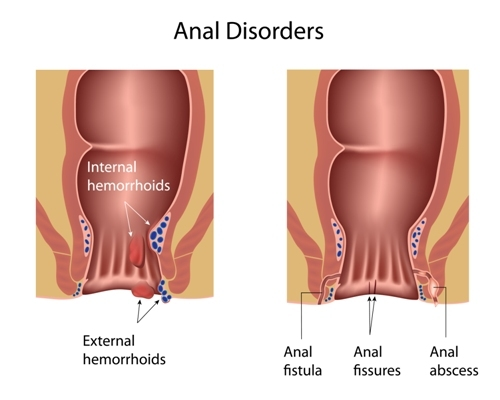 colorectal cancer hemorrhoids
