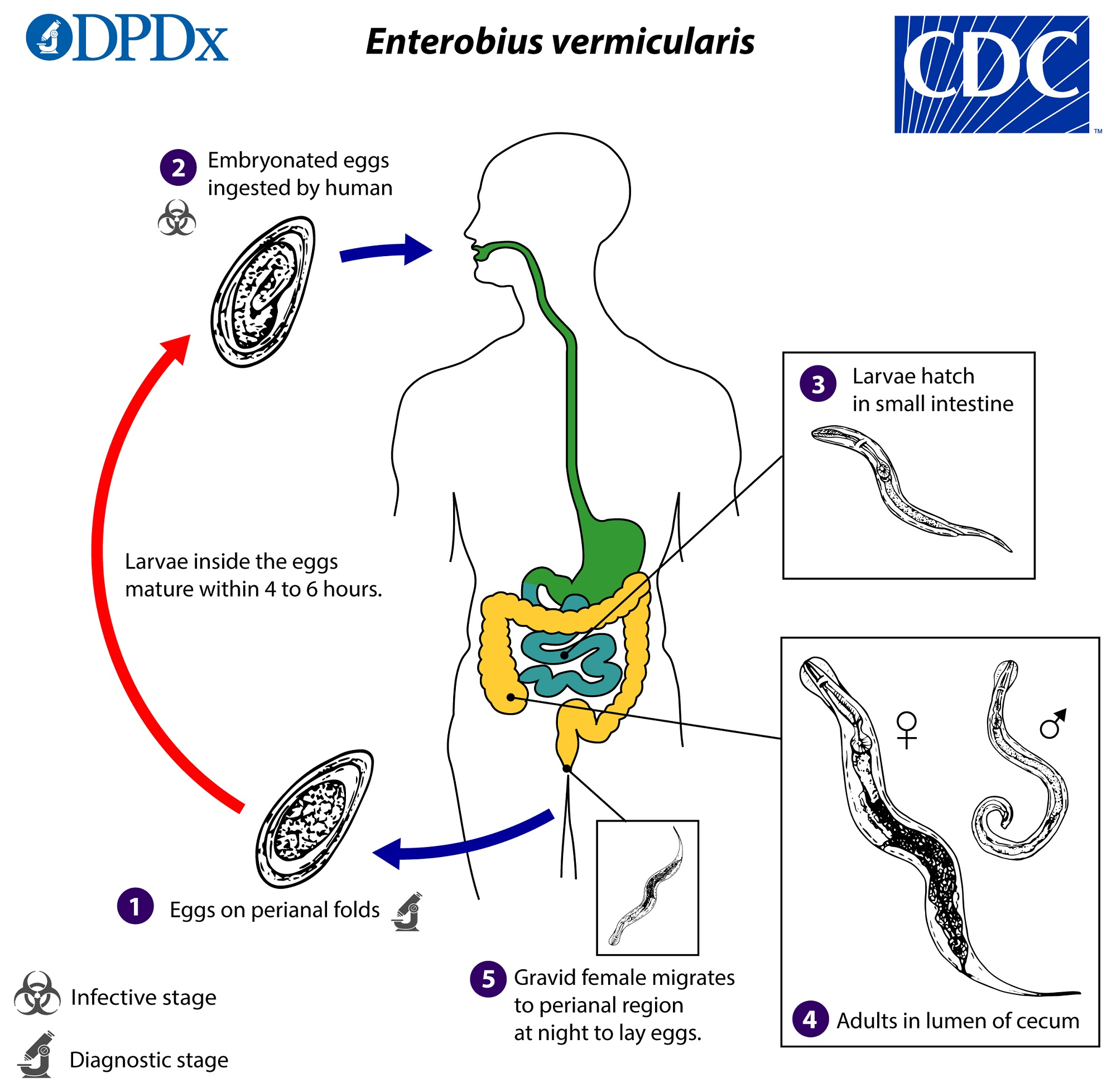 enterobius vermicularis signs and symptoms