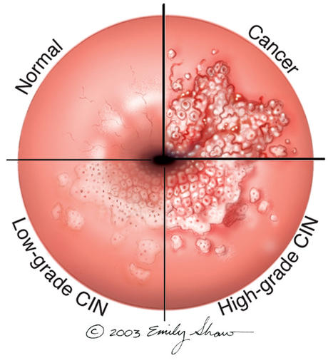 what is the human papilloma virus (hpv)