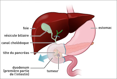 uterine cancer early stage