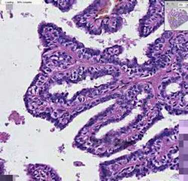 sclerosing papilloma with atypia