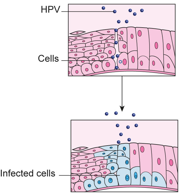 papilloma cells meaning