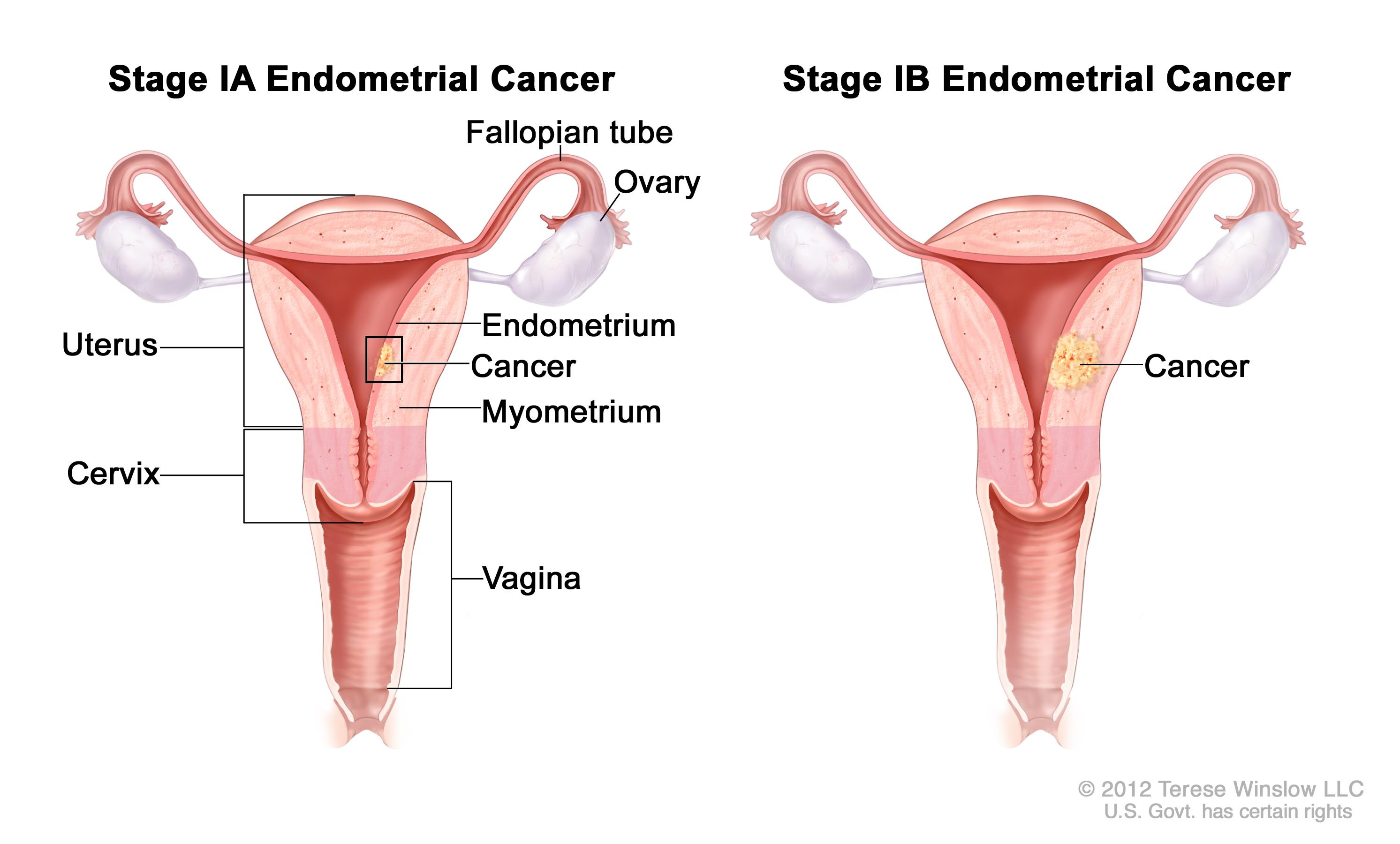 endometrial cancer endometriosis cancer renal etapa 3