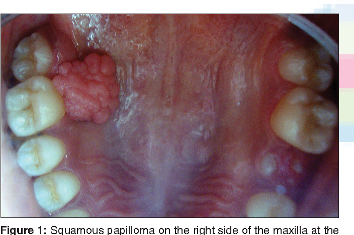 oral squamous papilloma