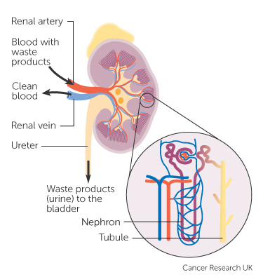 cancer of renal
