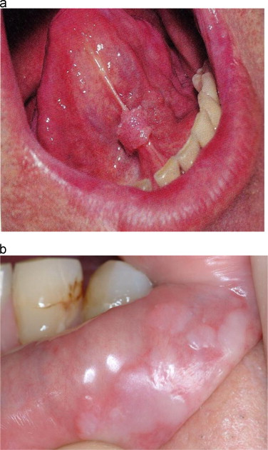 hpv and throat issues papillary thyroid cancer in thyroglossal duct cyst