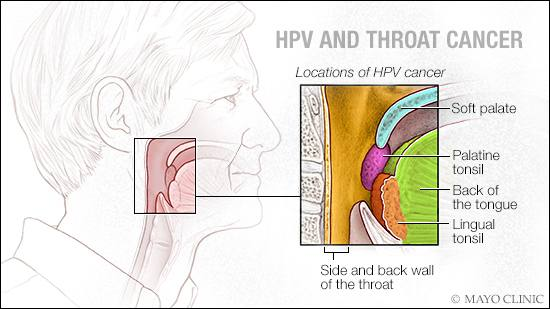 hpv and throat cancer in females detoxifiant limfatic