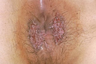 hpv and wart