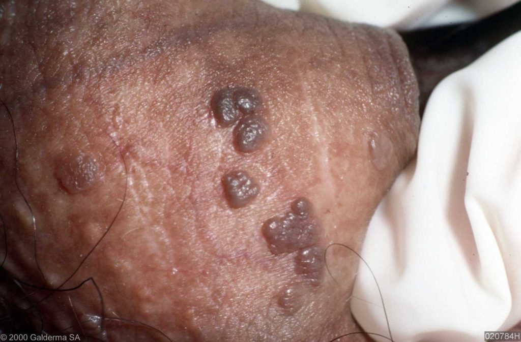 hpv behandeling man papillary urothelial cancer icd 10