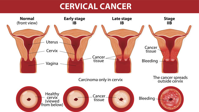 hpv during pregnancy treatment