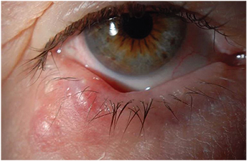 hpv eye treatment que es papiloma intraductal