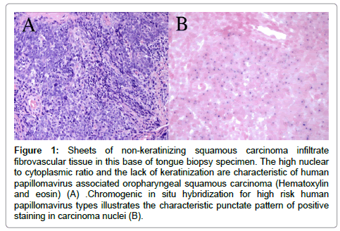 hpv related squamous cell carcinoma