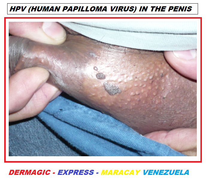 hpv skin issues