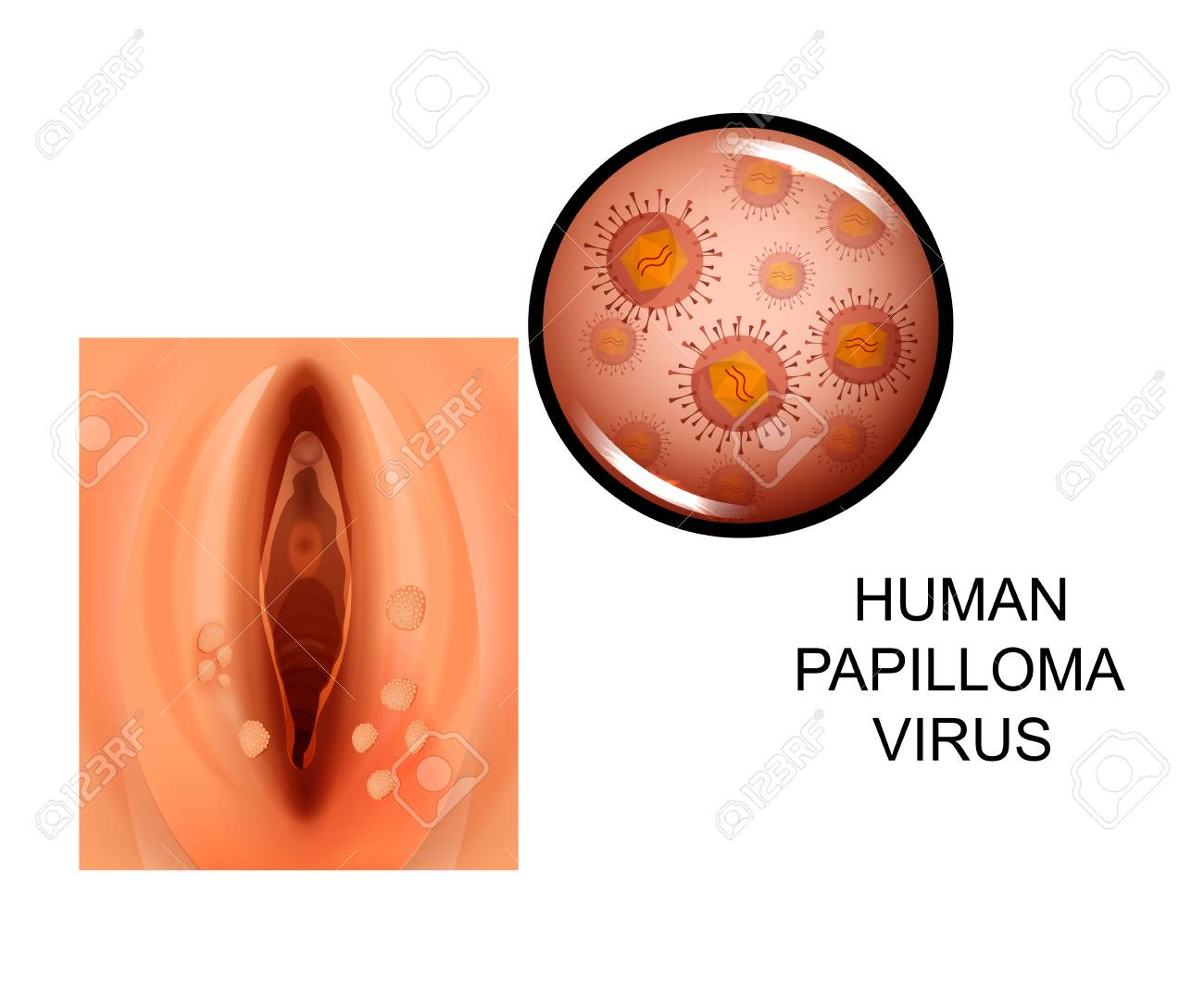 hpv virus italiano hpv cervical cancer developing countries