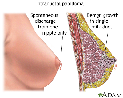 intraductal papilloma breast treatment