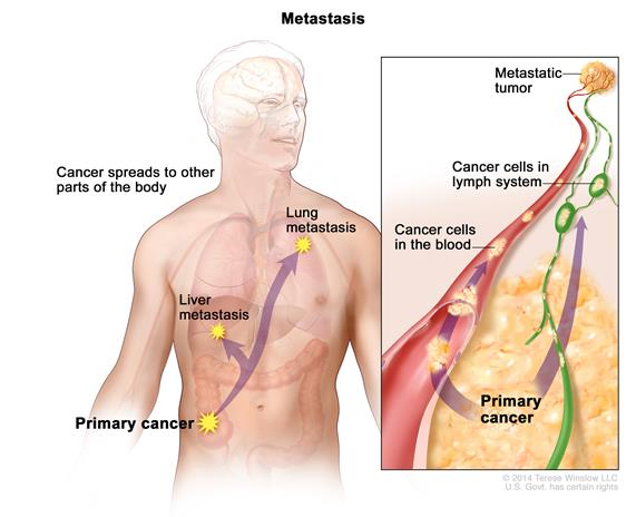 metastatic cancer means icd 10 code for papillomatosis