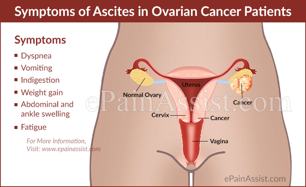 ovarian cancer abdominal ascites intraductal papilloma treatment options