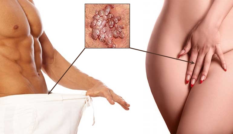 pancreatic cancer foods papilloma hpv come si trasmette