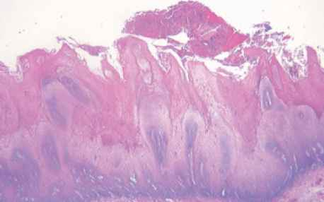 squamous papilloma vocal cord icd 10 screening hpv testing for cervical cancer the good the bad and the ugly