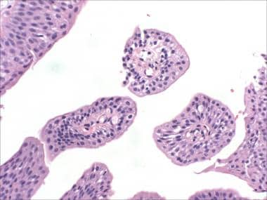 Transitional cell papilloma of the urinary bladder