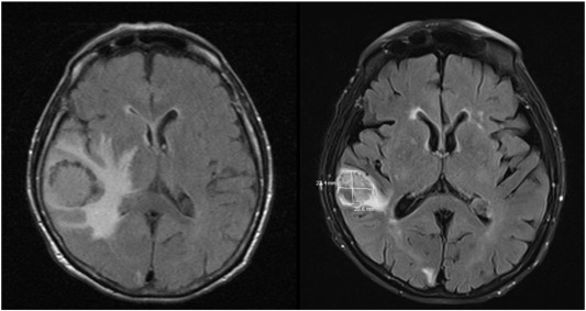 uterine cancer brain metastases