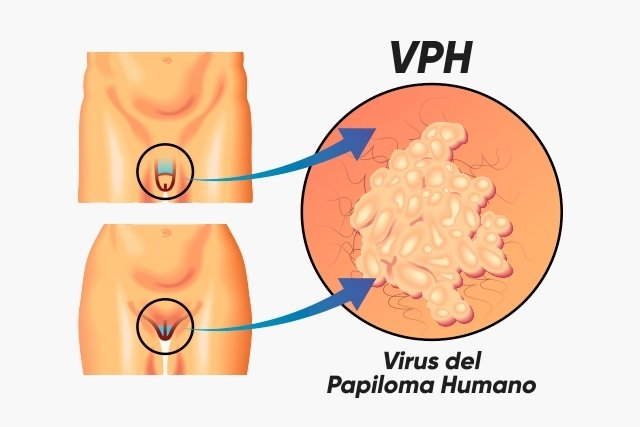 virus papiloma humano latente hpv is cancer