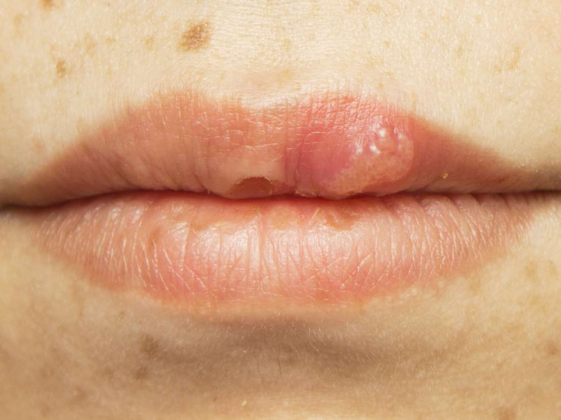 wart on mouth lips