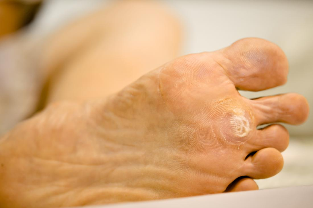 warts on hands and pregnancy