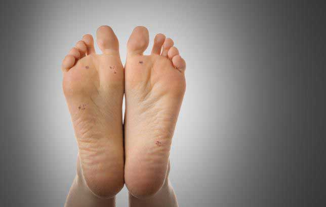 warts treatment by homeopathy