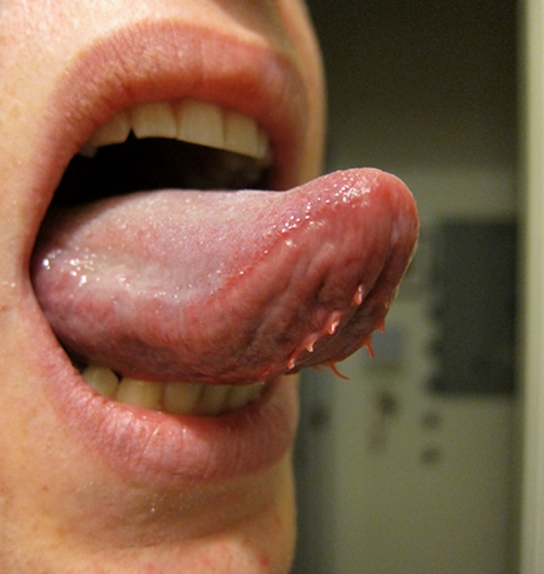 hpv under the tongue warts on back tongue