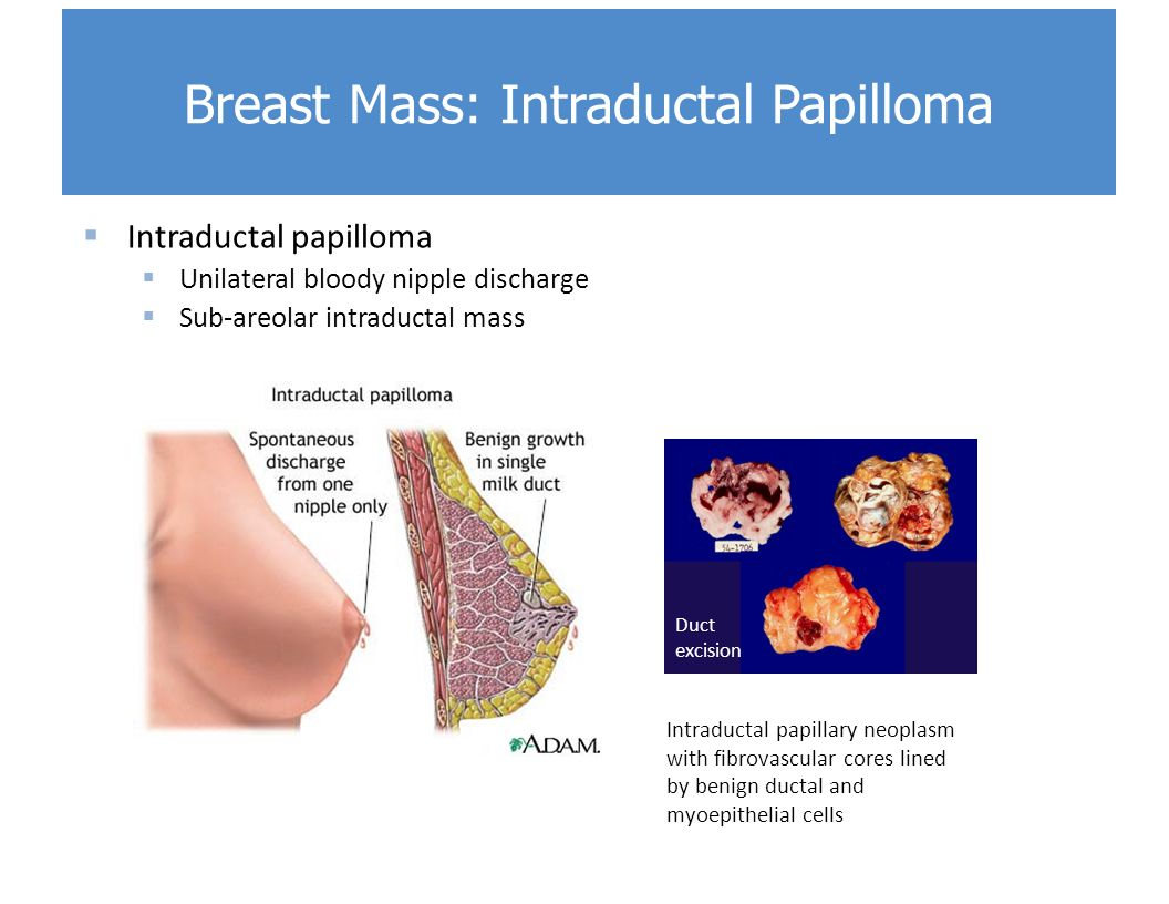 intraductal papilloma of breast symptoms cancer pancreas hereditaire