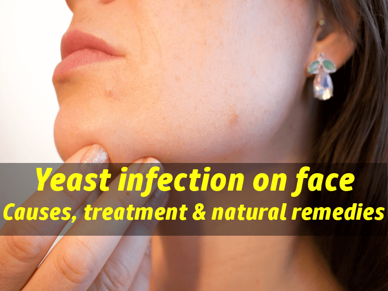 hpv symptoms yeast infection