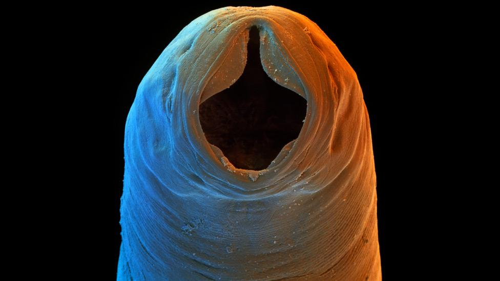 hookworm therapy multiple sclerosis