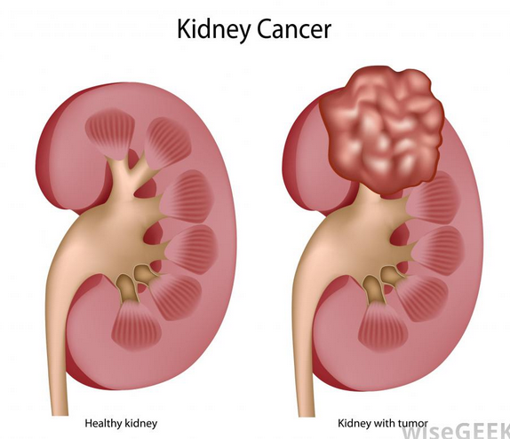 cancer renal etiologia