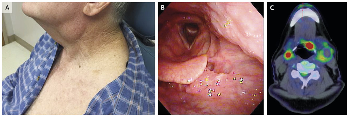 hpv and squamous cell carcinoma paraziti in corp