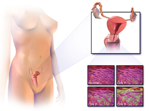 hpv disease definition uterine cancer pain in legs