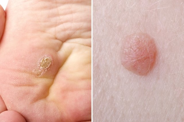 noutati in cancer prostata hpv virus after treatment