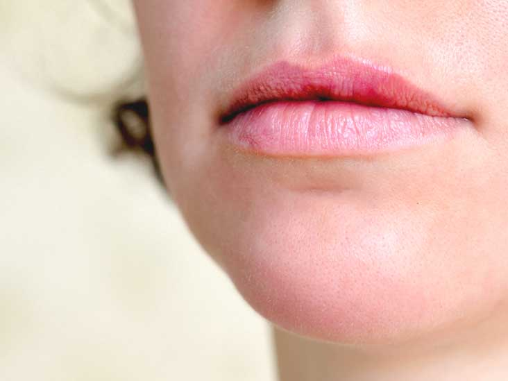hpv on lip symptoms hpv means of transmission