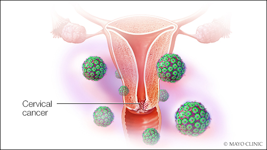 squamous cell carcinoma vs squamous cell papilloma hpv types and symptoms