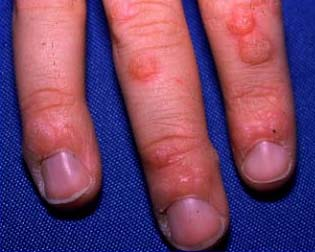 hpv warts in fingers