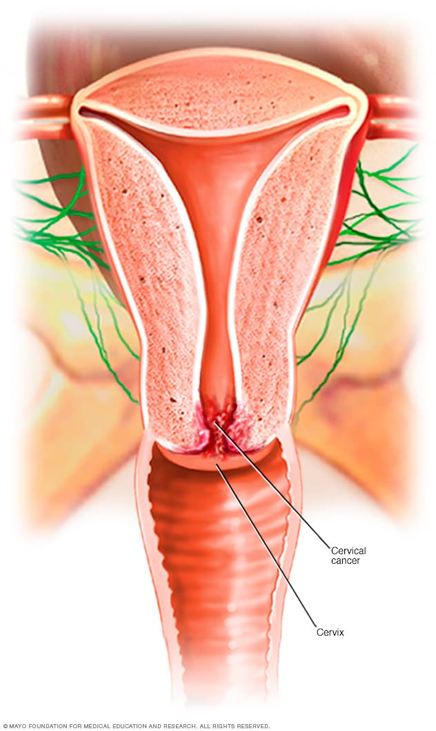 cancer from hpv symptoms cancer colon pathology