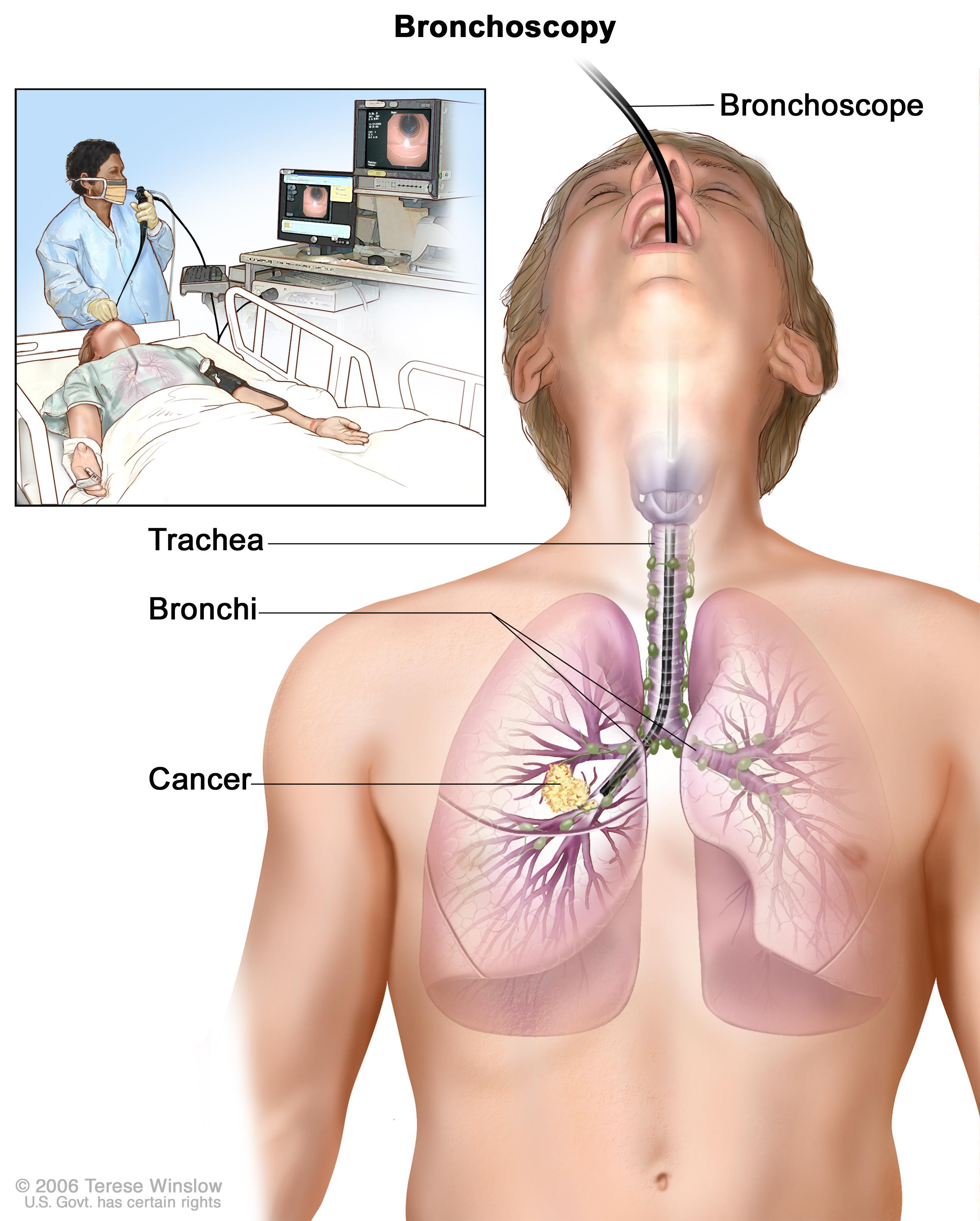 human papillomavirus in lung cancer neuroendocrine cancer and fatigue