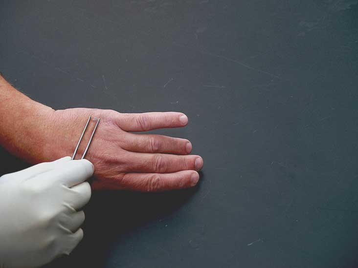 flat warts on hands removal