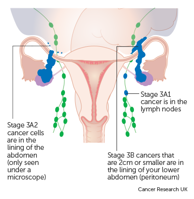 peritoneal cancer stage 3 survival rate oxyuris equis